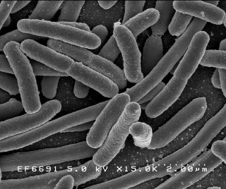 1. E. coli bacteria. Scanning electron micrograph of Escherichia coli bacteria, grown in culture and adhered to a cover slip. Photo Credit: Rocky Mountain Laboratories; NIAID Biodefense Image Library (http://www.niaid.nih.gov/Biodefense/Public/Images.htm), National Institute of Allergy and Infectious Diseases (NIAID, http://www.niaid.nih.gov), National Institutes of Health (NIH, http://www.nih.gov), United States Department of Health and Human Services (http://www.dhhs.gov), Government of the United States of America (USA).