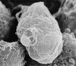 """3. HIV, the cause of AIDS (Acquired Immunodeficiency Syndrome). Scanning electron micrograph of human immunodeficiency virus (HIV), grown in cultured lymphocytes. Virions are seen as small spheres on the surface of the cells. Photo Credit: C. Goldsmith, 1984, """"Scanning electron micrograph of human immunodeficiency virus (HIV), grown in cultured lymphocytes"""", PHIL ID# 1843, Public Health Image Library (PHIL, http://phil.cdc.gov), Centers for Disease Control and Prevention (CDC, http://www.cdc.gov), United States Department of Health and Human Services (http://www.dhhs.gov), Government of the United States of America (USA)."""