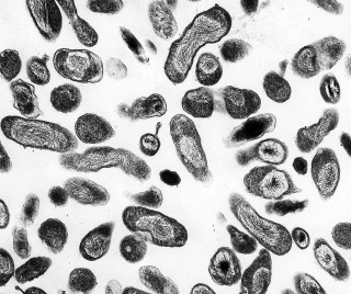 4. Coxiella burnetii, the bacteria that causes Q fever. Photo Credit: Rocky Mountain Laboratories; NIAID Biodefense Image Library (http://www.niaid.nih.gov/Biodefense/Public/Images.htm), National Institute of Allergy and Infectious Diseases (NIAID, http://www.niaid.nih.gov), National Institutes of Health (NIH, http://www.nih.gov), United States Department of Health and Human Services (http://www.dhhs.gov), Government of the United States of America (USA).
