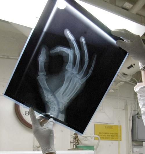 Studying an X-ray of a Broken Finger Aboard the United States Navy Aircraft Carrier USS Abraham Lincoln (CVN 72), February 11, 2005, Philippine Sea. Photo Credit: Photographer's Mate Airman Patrick M. Bonafede, Navy NewsStand – Eye on the Fleet Photo Gallery (http://www.news.navy.mil/view_photos.asp, 050211-N-1229B-034), United States Navy (USN, http://www.navy.mil); United States Department of Defense (DoD, http://www.DefenseLink.mil or http://www.dod.gov), Government of the United States of America (USA).