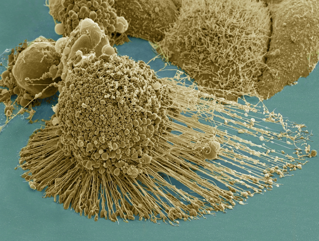 Death: The Genetically-Programmed and Genetically-Initiated Self-Destruction (Apoptosis or Programmed Cell Death) of A HeLa Cell. Photo Credit: HeLa-IV (http://imagebank.nih.gov/details.cfm?imageid=1463), NIH Image Bank (http://imagebank.nih.gov), National Institutes of Health (NIH, http://www.nih.gov), United States Department of Health and Human Services (http://www.dhhs.gov), Government of the United States of America (USA).